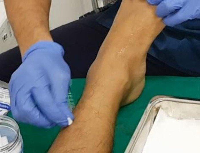 terapia-neural-esguince-tobillo-desinfeccion-piel