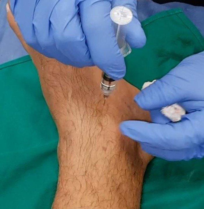 terapia-neural-esguince-tobillo-infiltracion-ligamentos