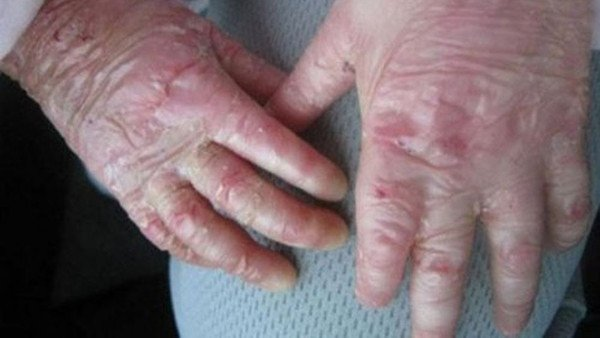 hereditary-dystrophic-ampullary-epidermolysis
