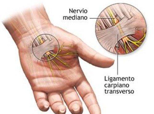 sindrome-tunel-carpiano