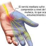 sindrome-tunel-carpiano-nervio-mediano