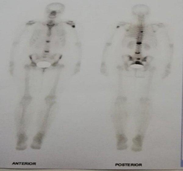 gammagrafia-osea-atezolizumab-quimioterapia-tratamiento-cancer-pulmon