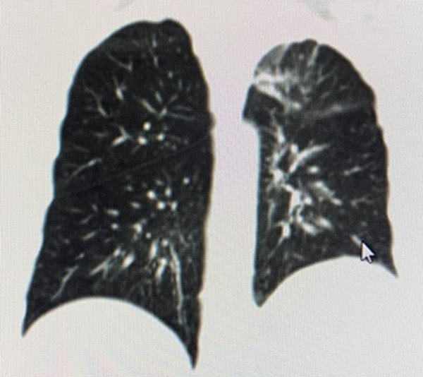 ciclo-atezolizumab-quimioterapia-tratamiento-cancer-pulmon
