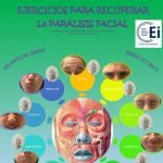 definicion-infografia-paralisis-facial