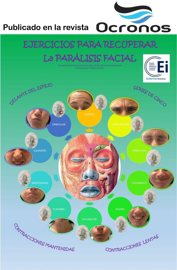 infografia-paralisis-facial