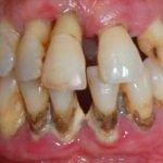 manifestaciones-orales-diabetes-mellitus