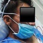 1-hiv-inmunodeficiencia-histoplasmosis