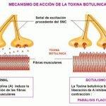 1-toxina-botulinica-mecanismo-accion-botulismo-clostridium-botulinum