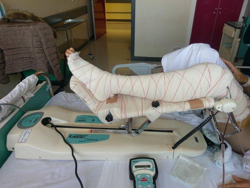 2-artromotor-postoperatorio-rodilla