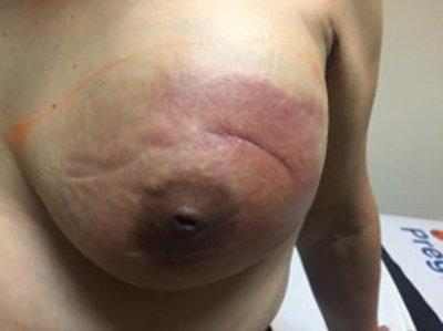 2-tumor-phyllodes-maligno