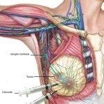 4-radioterapia-cancer-mama