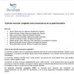 torticolis-congenita-parto