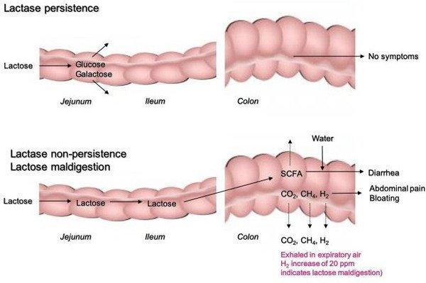 1-fisiopatologia-intolerancia-lactosa