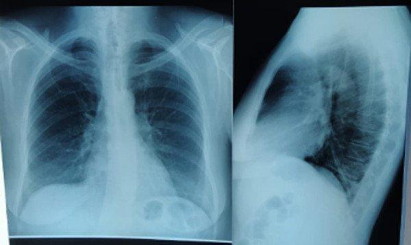 1-infiltrado-alveolar-basal-bilateral-aumento-trama-broncovascular