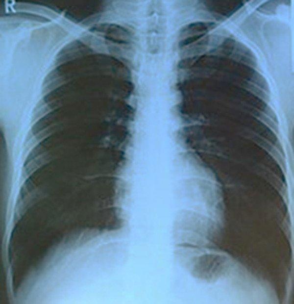2-lupus-eritematoso-sistemico-radiografia-torax