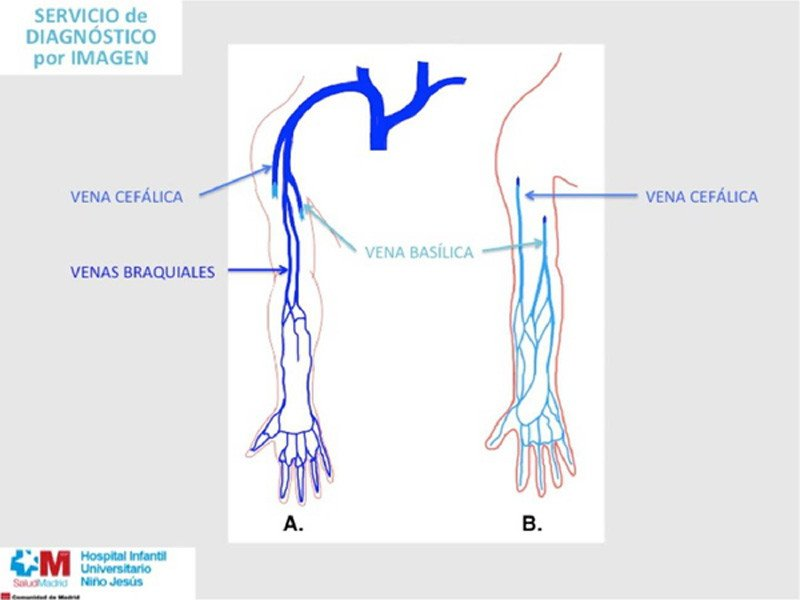4-PICC-sistema-venoso-profundo-superficial-miembro-superior