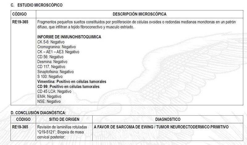 8-sarcoma-ewing