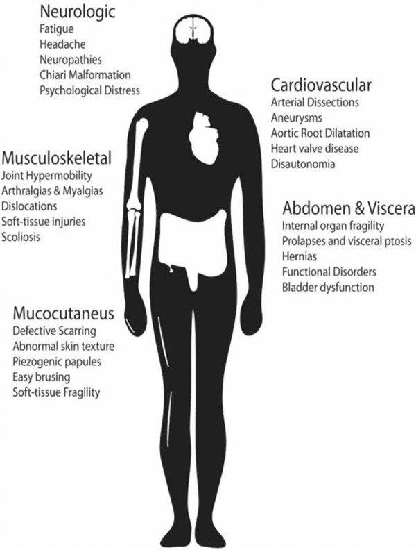 2-manifestaciones-sindrome-ehlers-danlos