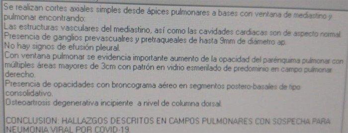 5-coronavirus-hallazgos