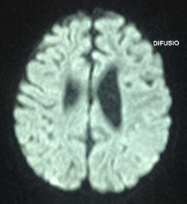 1-sindrome-west-encefalopatia-epileptica