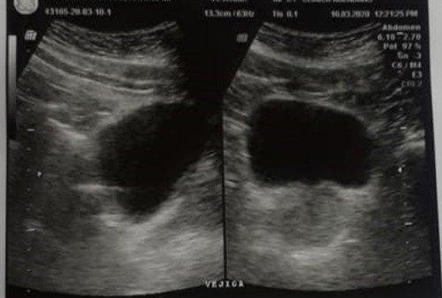 6-ecografia-abdomen-superior-adenocarcinoma
