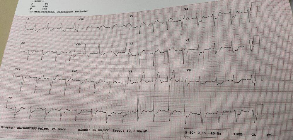 electrocardiograma-infradesnivel-ST-V4-V6-II-aVF-hemibloqueo-anterior