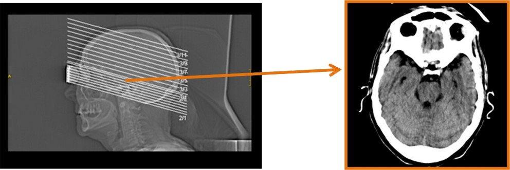 1-arteritis-temporal-celulas-gigantes-TAC