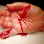 1-herida-incisa-mano