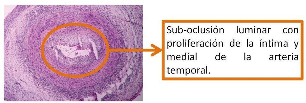 2-biopsia-arteritis-temporal-celulas-gigantes