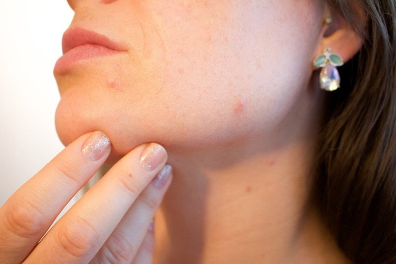 telemedicina-dermatologo-consulta-online