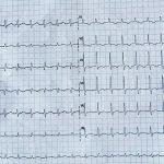 1-sindrome-taquicardia-bradicardia-caso-clinico