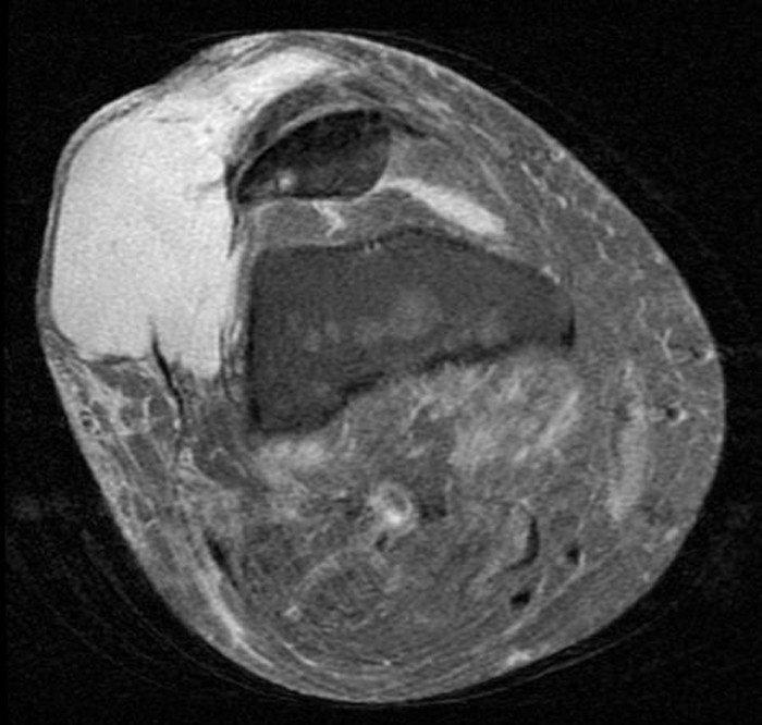 2-tumor-maligno-miembro-inferior-resonancia