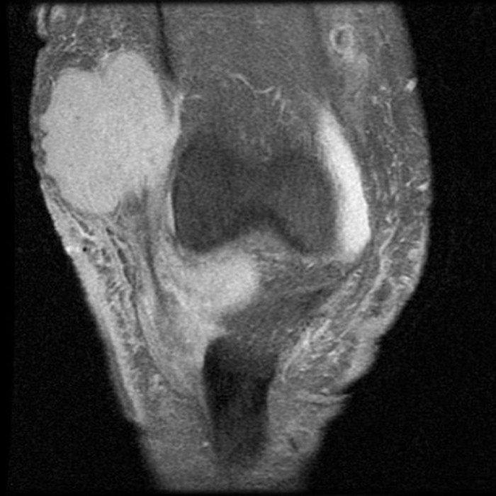 3-tumor-maligno-miembro-inferior-resonancia-sarcoma-partes-blandas
