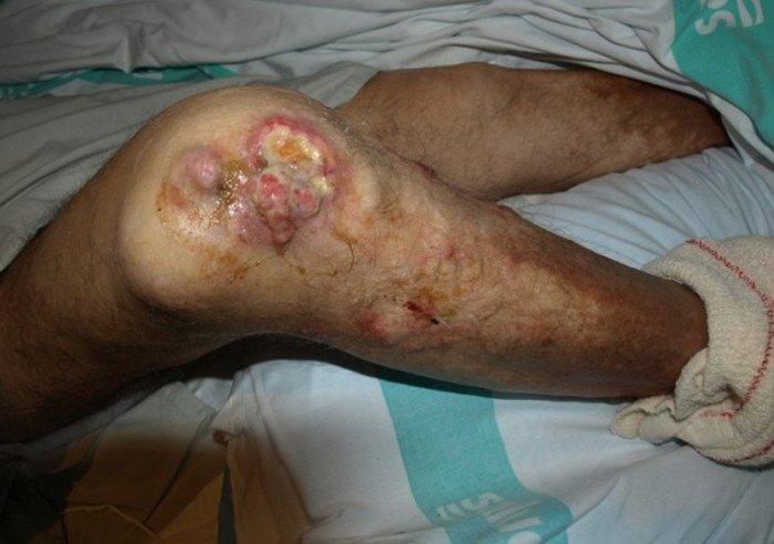4-tumor-sarcoma-partes-blandas-miembro-inferior