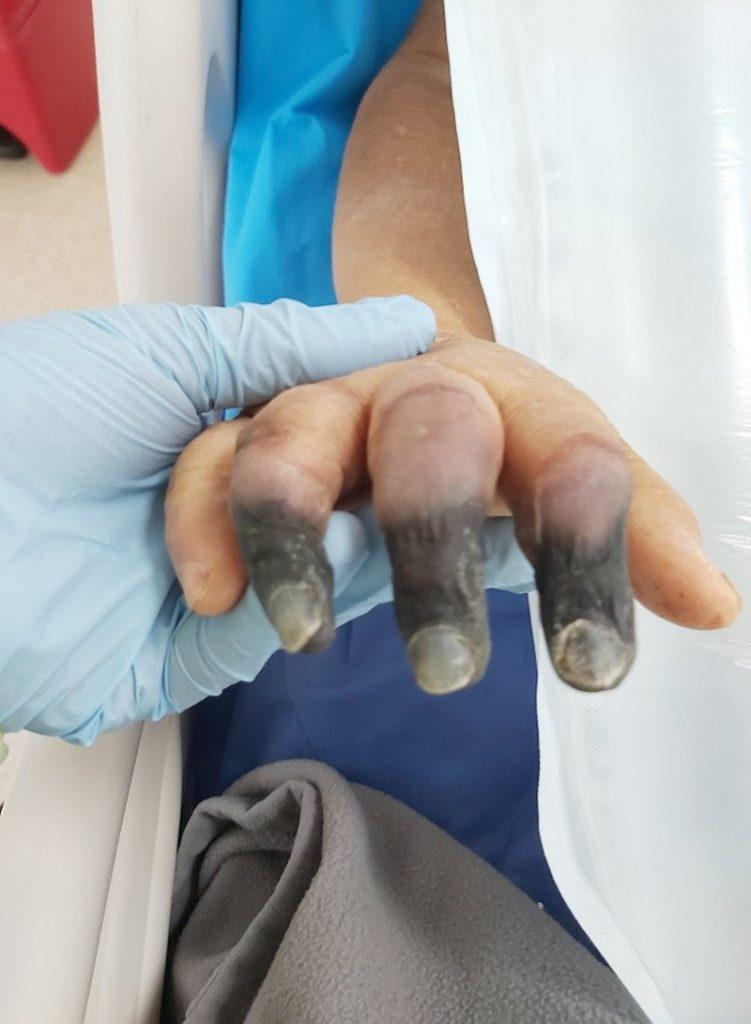 trombocitopenia-inducida-heparina-HIT-covid-19