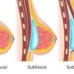 1-localizacion-protesis-mama-tejido-mamario