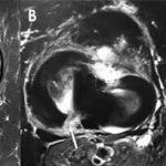 2-resonancia-magnetica-rodilla-menisco