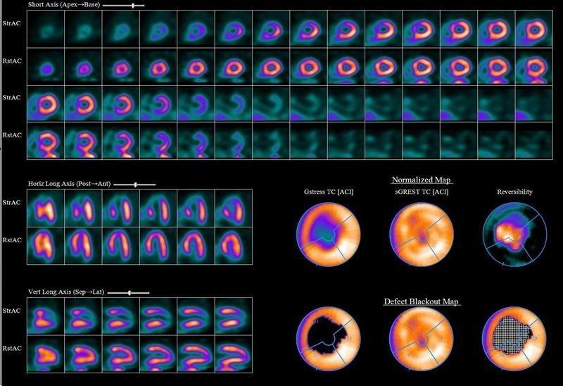 gammagrafia-cardiaca-diagnostico-cardiopatias-congenitas-medicina-nuclear