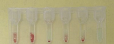 1-anemia-hemolitica-autoinmune-secundaria-AHAI-coombs