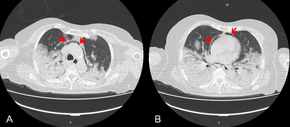 2-neumomediastino-neumoperitoneo-neumonia-coronavirus-COVID-19-tomografia-torax-corte-axial