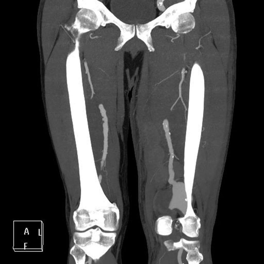 3-aneurisma-arteria-poplitea-angio-tac-corte-coronal