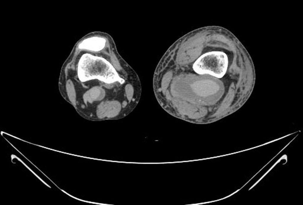 4-aneurisma-arteria-poplitea-angio-tac-corte-axial