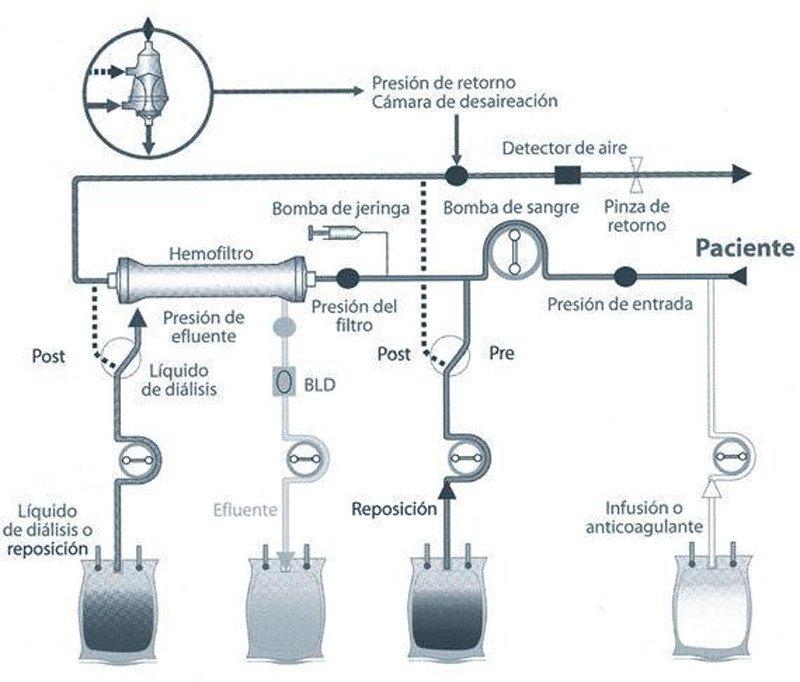 3-circuito-hemodiafiltracion-venovenosa-continua
