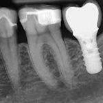 1-exploracion-radiologica-intraoral-extraoral-proyecciones-periapicales