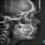 1-telerradiografia-lateral-digital