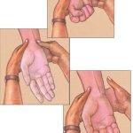 maniobra-test-allen-extraccion-muestra-gasometria-arterial