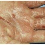 1-dermatofitides-dermatofitosis-mano