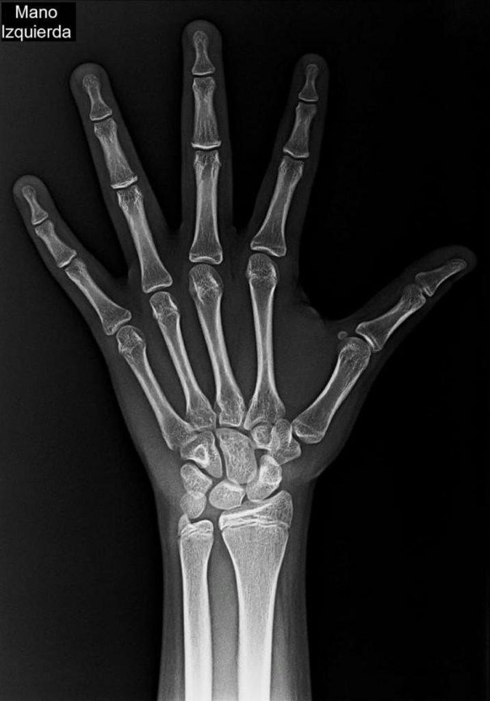 Figura 1. Radiografía posteroanterior de mano-muñeca.