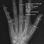 2-edad-osea-calculada-automaticamente-IA-radiografia-PA-mano