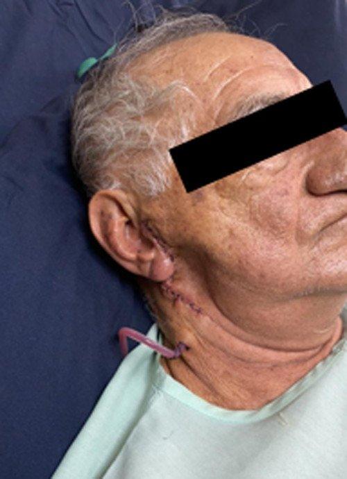 Figura 1. Paciente masculino de 70 años de edad